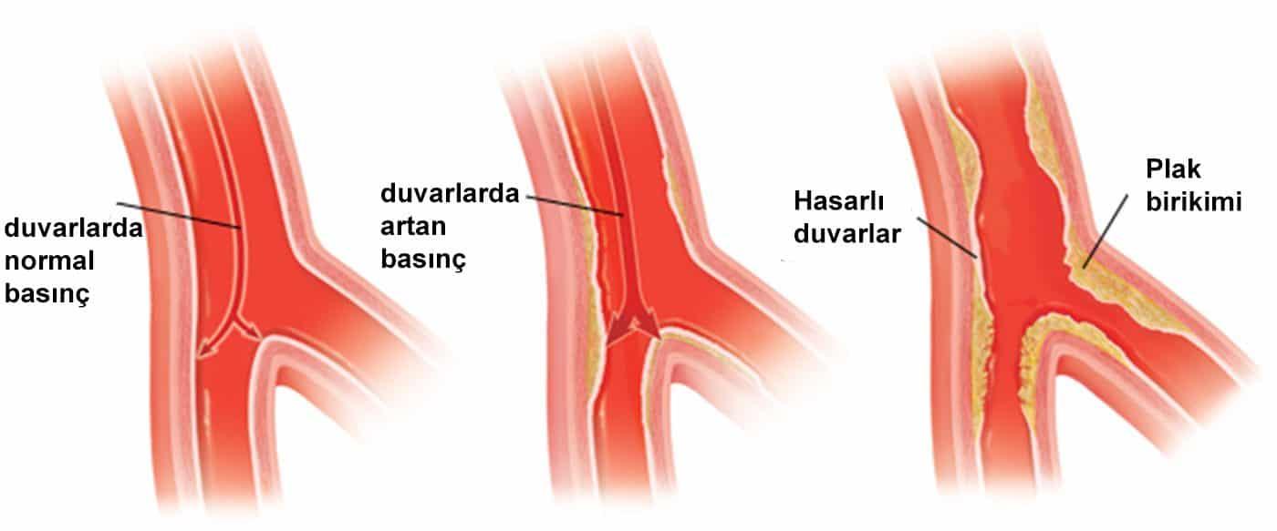 Artan kan basıncı: başlıca nedenleri ve sonuçları